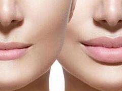 Могут лилопнуть «перекаченные» губы