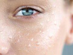 Надо умываться по утрам и вечерам: почему портится кожа лица