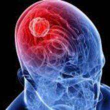 Простой анализ крови может заменить операцию для пациентов с опухолью головного мозга