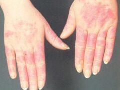 Аллергия на холод: что это такое и как ее распознать