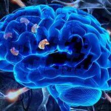 Найден новый способ определения болезни Альцгеймера на раннем этапе