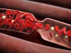 Ученые протестировали вакцину, препятствующую образованию тромбов