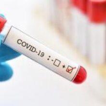 В Украине за сутки зафиксировали 852 новых случая коронавируса