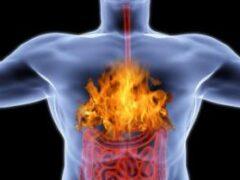 Изжога: причины заболевания, диагностика и лечение