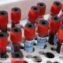 Антитела к коронавирусу стабильны и через 7 месяцев после заражения