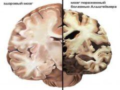 Как протекает болезнь Альцгеймера: от первой до седьмой стадии